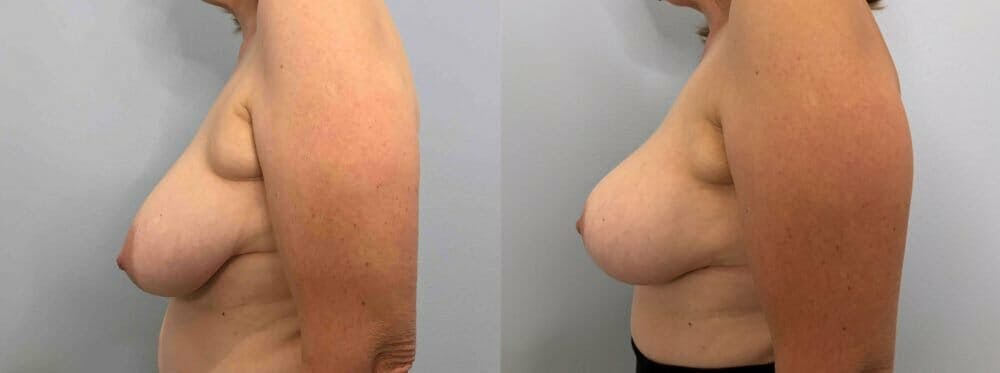 Breast Lift Gallery - Patient 47125739 - Image 3