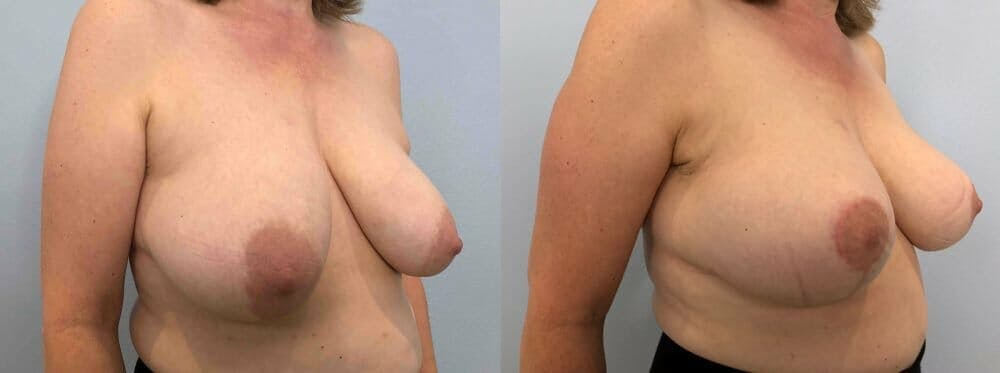 Breast Lift Gallery - Patient 47125739 - Image 4