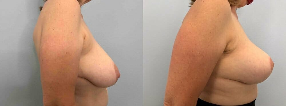 Breast Lift Gallery - Patient 47125739 - Image 5