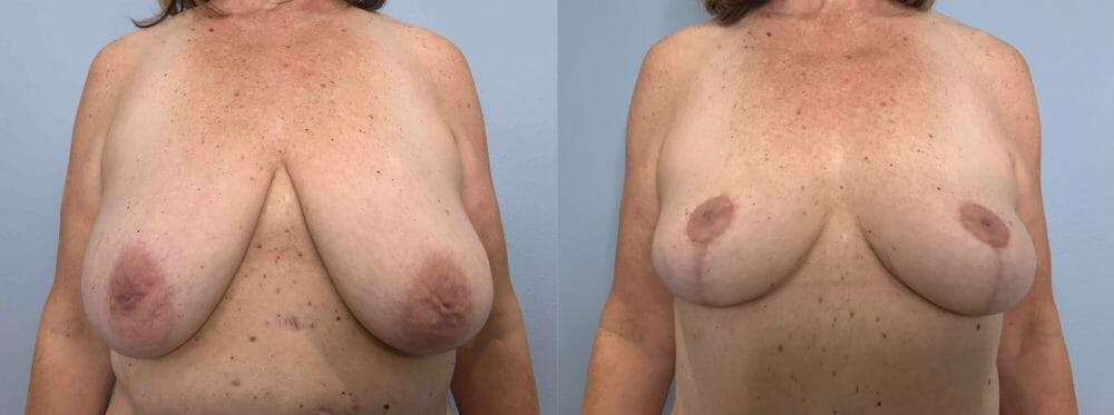 Breast Lift Gallery - Patient 47125791 - Image 1