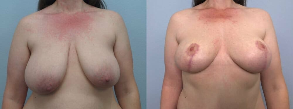 Breast Lift Gallery - Patient 47125839 - Image 1