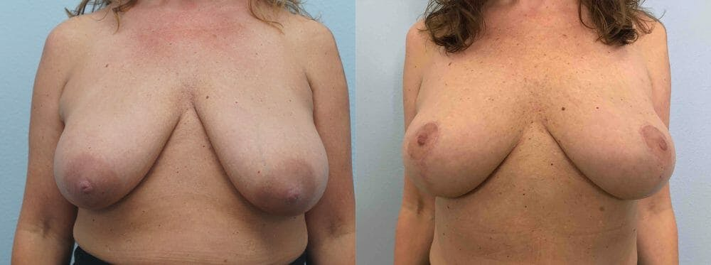 Breast Lift Gallery - Patient 47125890 - Image 1