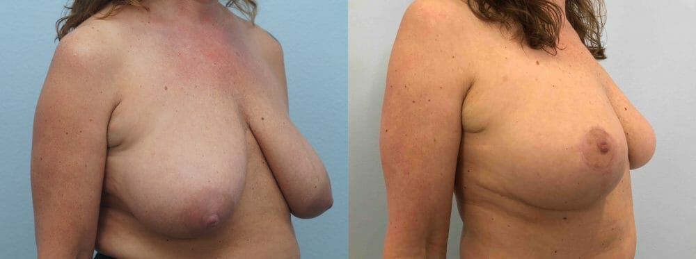 Breast Lift Gallery - Patient 47125890 - Image 2