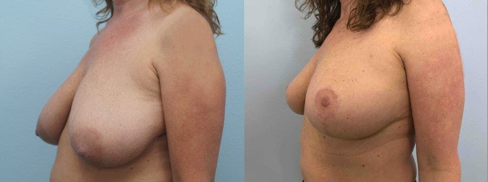 Breast Lift Gallery - Patient 47125890 - Image 4