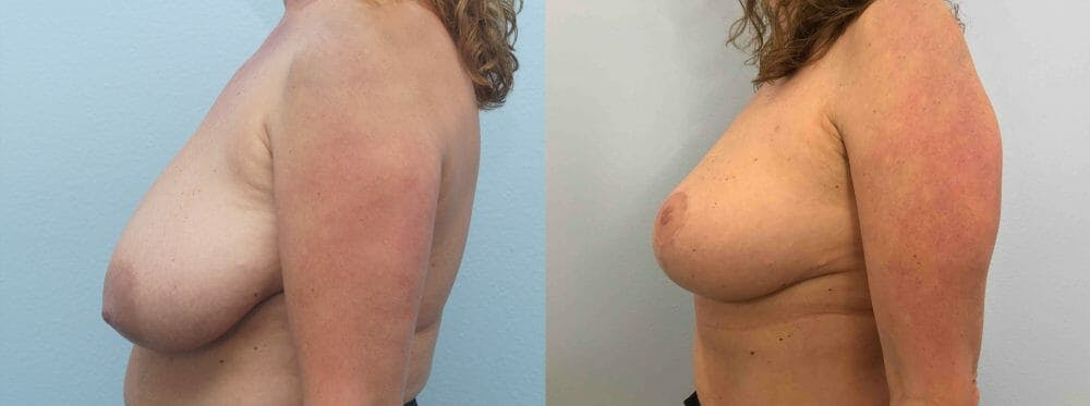 Breast Lift Gallery - Patient 47125890 - Image 5