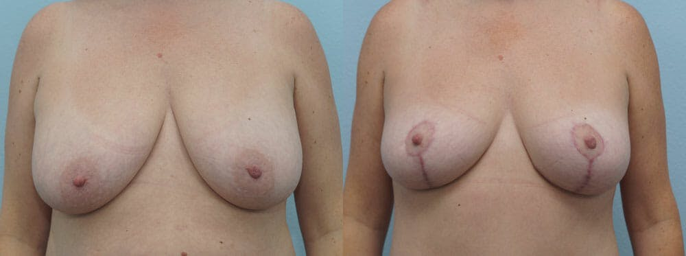 Breast Lift Gallery - Patient 47125951 - Image 1