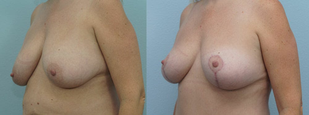 Breast Lift Gallery - Patient 47125951 - Image 2