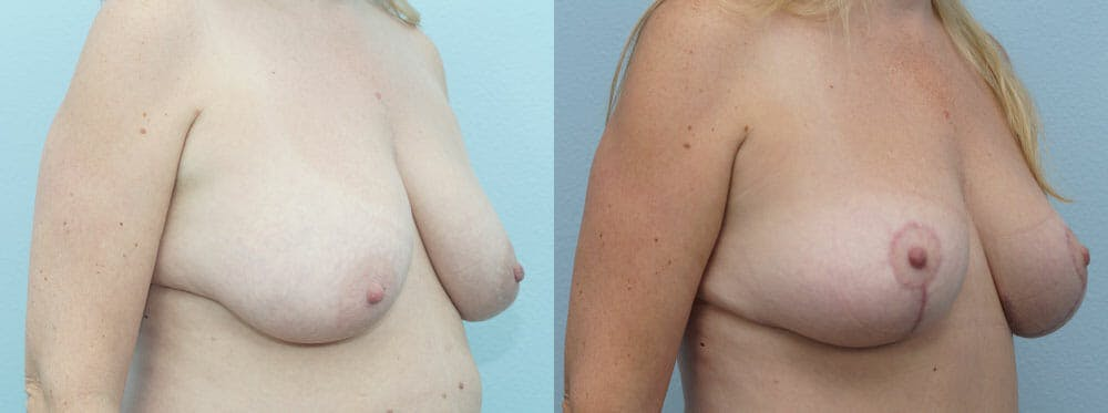 Breast Lift Gallery - Patient 47125951 - Image 4