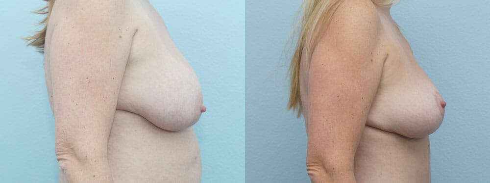 Breast Lift Gallery - Patient 47125951 - Image 5