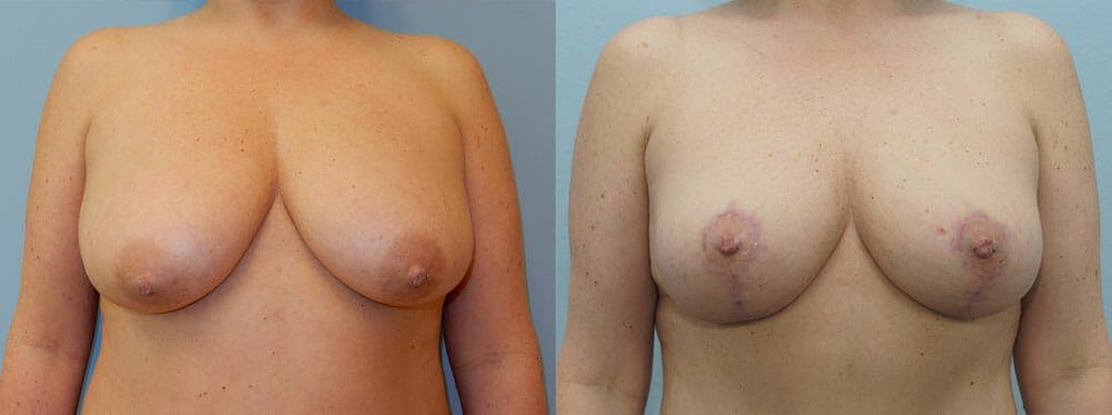 Breast Lift Gallery - Patient 47125997 - Image 1