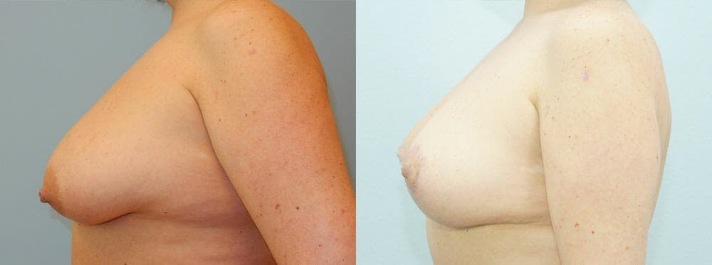 Breast Lift Gallery - Patient 47125997 - Image 2