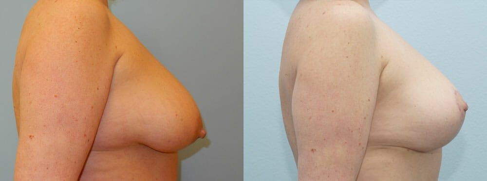 Breast Lift Gallery - Patient 47125997 - Image 3