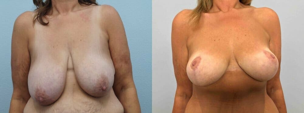 Breast Lift Gallery - Patient 47126010 - Image 1