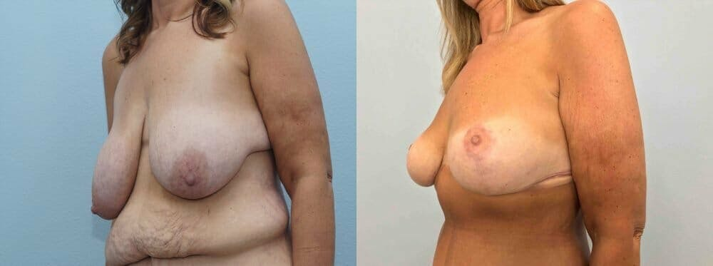 Breast Lift Gallery - Patient 47126010 - Image 2