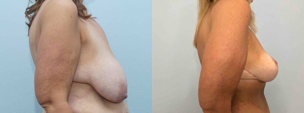 Breast Lift Gallery - Patient 47126010 - Image 4
