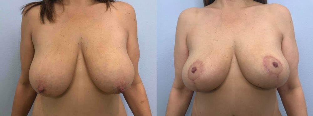 Breast Lift Gallery - Patient 47126071 - Image 1