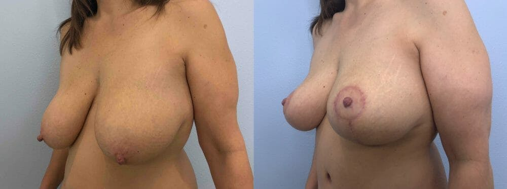 Breast Lift Gallery - Patient 47126071 - Image 2