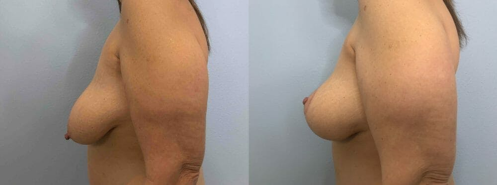 Breast Lift Gallery - Patient 47126071 - Image 3