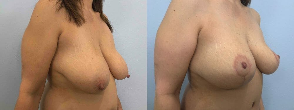 Breast Lift Gallery - Patient 47126071 - Image 4