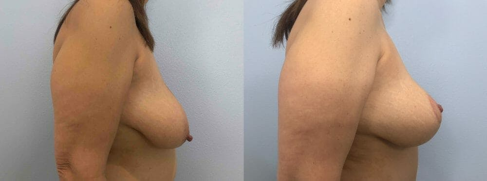 Breast Lift Gallery - Patient 47126071 - Image 5