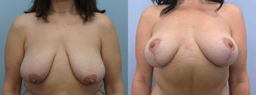 Breast Lift Gallery - Patient 47126093 - Image 1