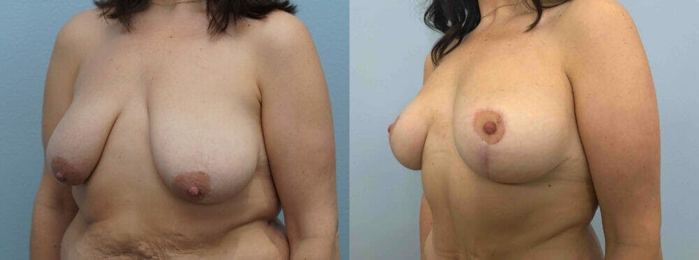 Breast Lift Gallery - Patient 47126093 - Image 2