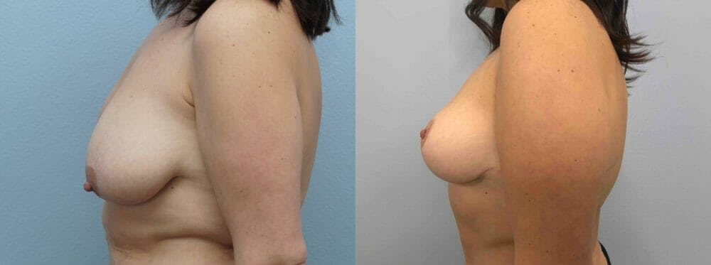 Breast Lift Gallery - Patient 47126093 - Image 3