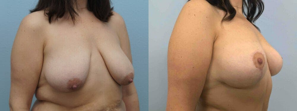 Breast Lift Gallery - Patient 47126093 - Image 4