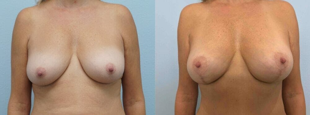 Breast Lift Gallery - Patient 47126119 - Image 1