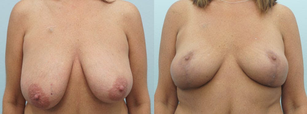 Breast Lift Gallery - Patient 47126172 - Image 1