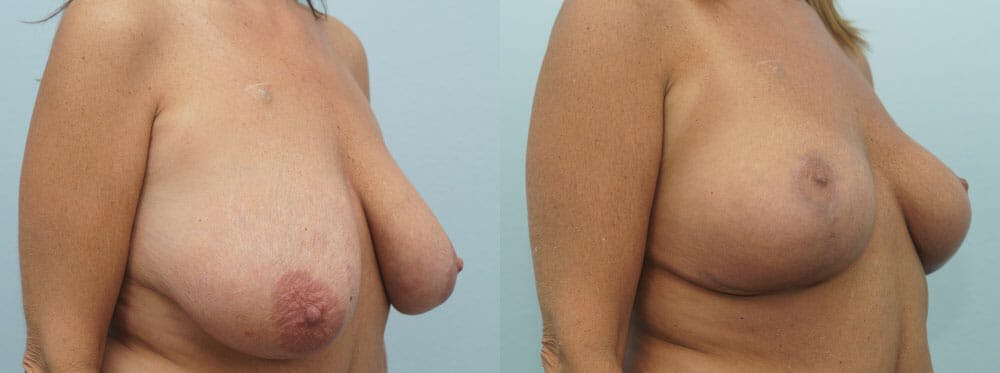 Breast Lift Gallery - Patient 47126172 - Image 2