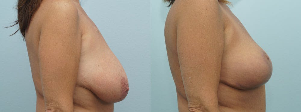 Breast Lift Gallery - Patient 47126172 - Image 3
