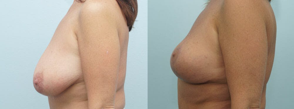 Breast Lift Gallery - Patient 47126172 - Image 5
