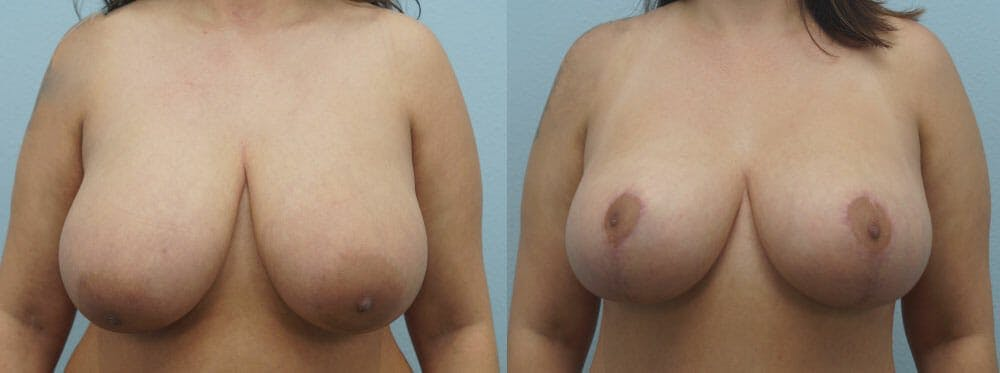 Breast Lift Gallery - Patient 47126212 - Image 1