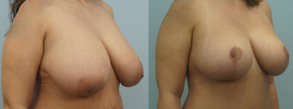 Breast Lift Gallery - Patient 47126212 - Image 2
