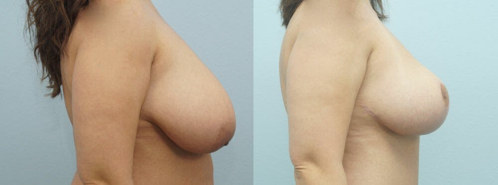 Breast Lift Gallery - Patient 47126212 - Image 3