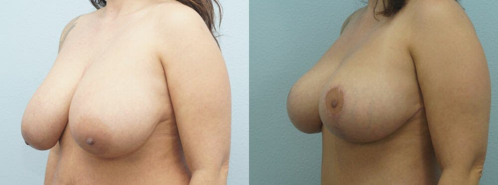 Breast Lift Gallery - Patient 47126212 - Image 4