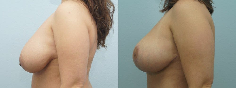 Breast Lift Gallery - Patient 47126212 - Image 5