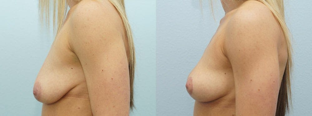 Breast Lift Gallery - Patient 47126238 - Image 2