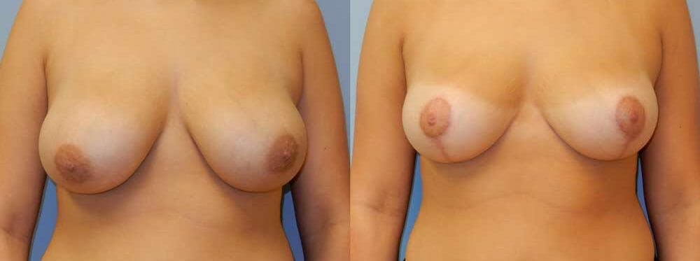 Breast Lift Gallery - Patient 47126246 - Image 1
