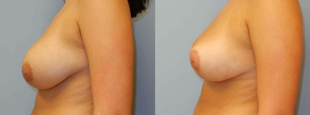 Breast Lift Gallery - Patient 47126246 - Image 3