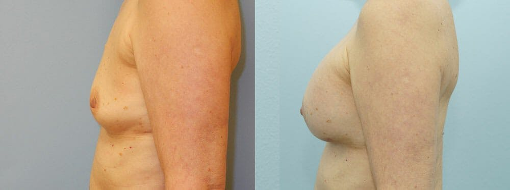 Breast Reconstruction  Gallery - Patient 47146644 - Image 2