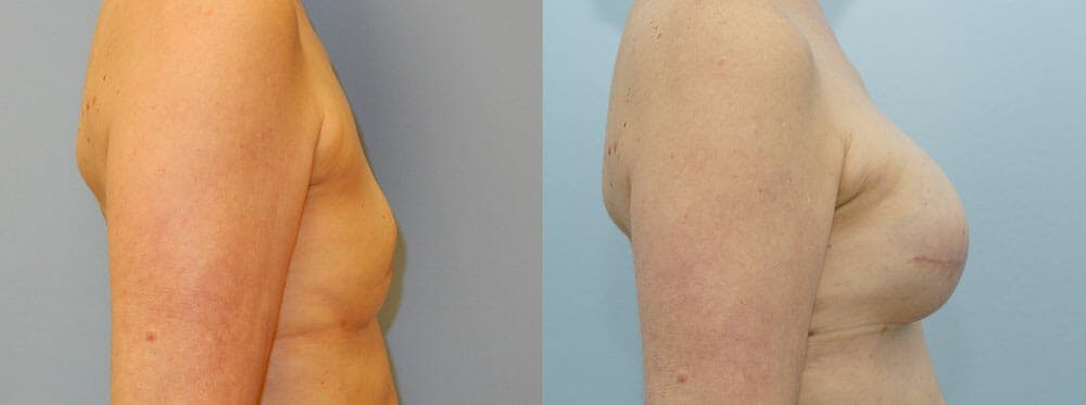 Breast Reconstruction  Gallery - Patient 47146644 - Image 3