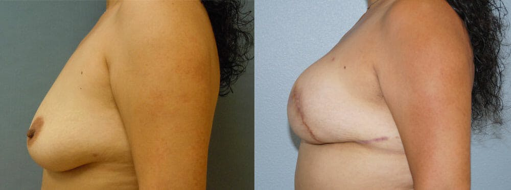 Breast Reconstruction  Gallery - Patient 47146666 - Image 2