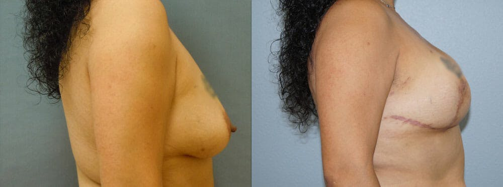 Breast Reconstruction  Gallery - Patient 47146666 - Image 3