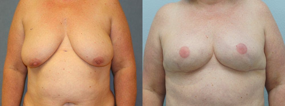 Breast Reconstruction  Gallery - Patient 47146682 - Image 1