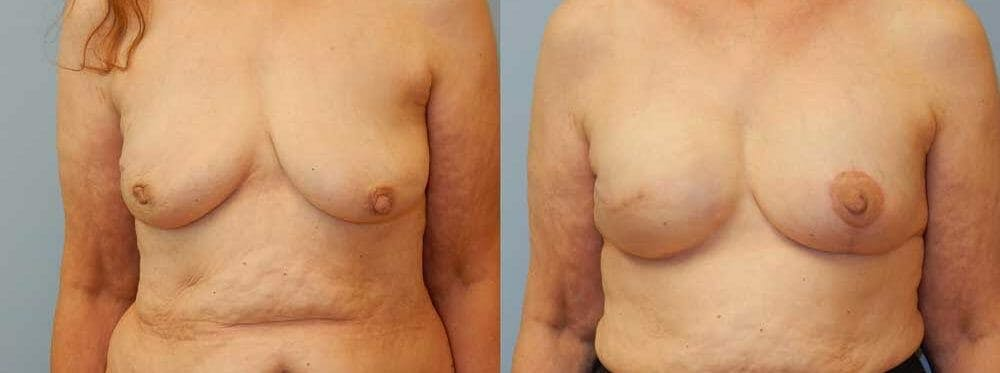 Breast Reconstruction  Gallery - Patient 47146695 - Image 1