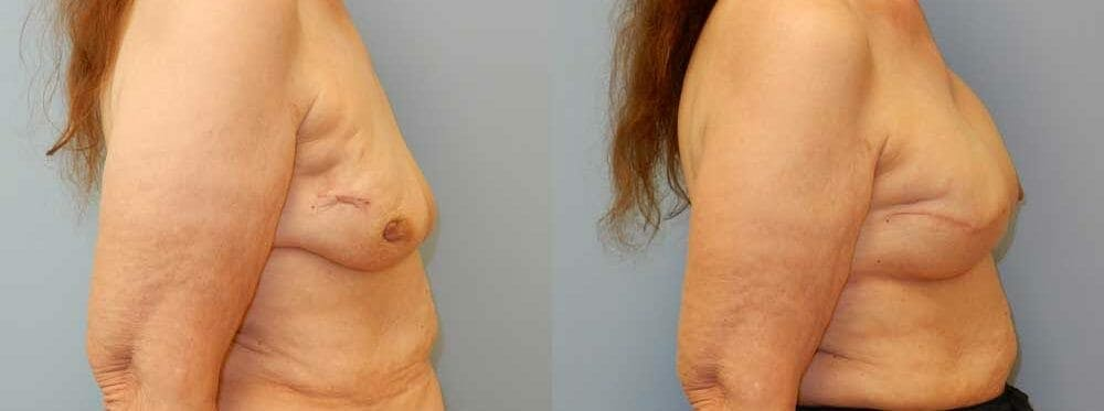 Breast Reconstruction  Gallery - Patient 47146695 - Image 2