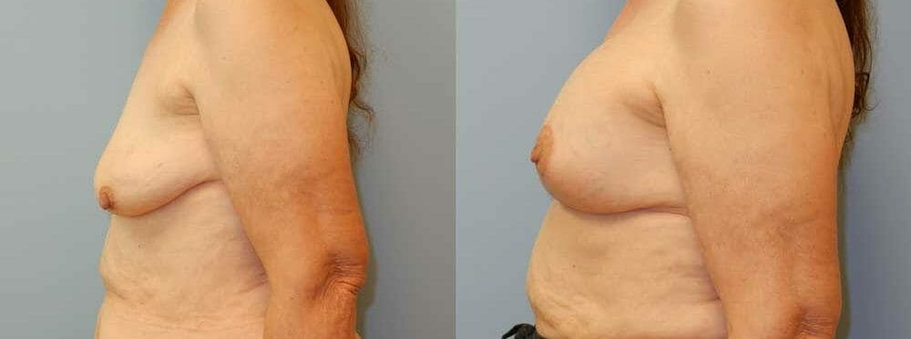 Breast Reconstruction  Gallery - Patient 47146695 - Image 3