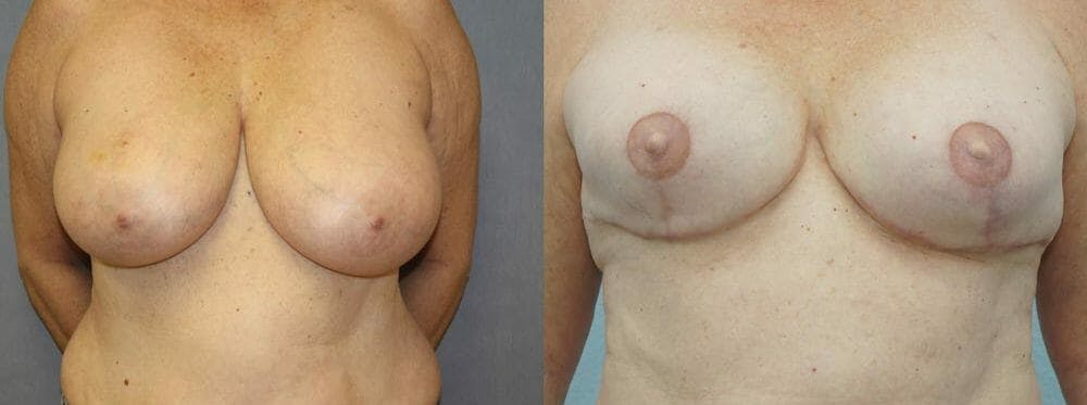 Breast Reconstruction  Gallery - Patient 47146719 - Image 1